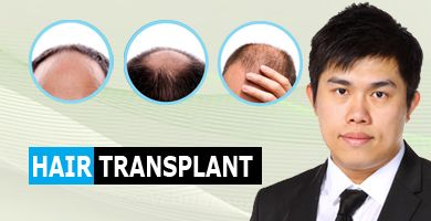 Home Page lower row_Hair Transplant 2