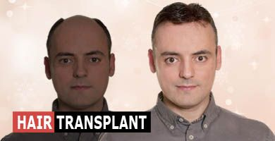 home-page-lower-row_hair-transplant-new